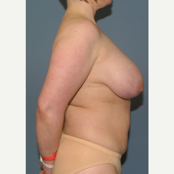 35-44 year old woman treated with Breast Reduction before 3475201