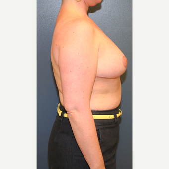 35-44 year old woman treated with Breast Reduction after 3475201