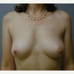 25-34 year old woman treated with Breast Implants before 3108525