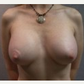 25-34 year old woman treated with Breast Implants after 3108525