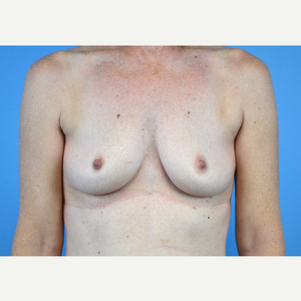 45-54 year old woman treated with Breast Implants before 3440056