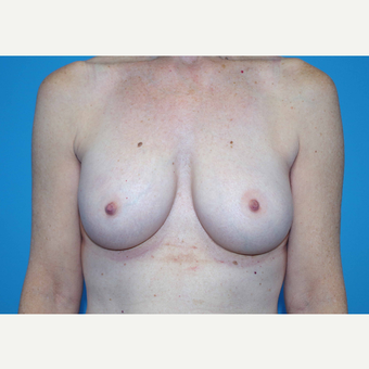 45-54 year old woman treated with Breast Implants after 3440056