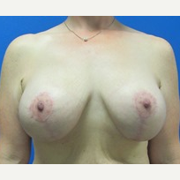 40 year old woman breast augmentation with lift 500cc implants after 3371072