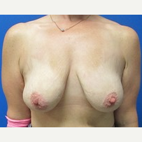 40 year old woman breast augmentation with lift 500cc implants before 3371072