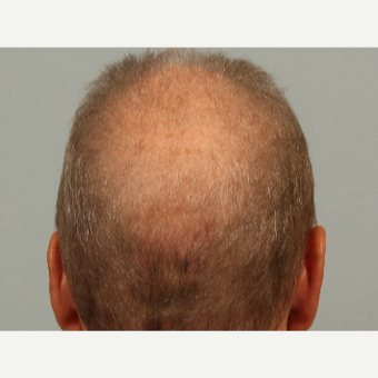 62 year old man treated with Hair Loss Treatment with microneedling and proprietary topical serum before 3453049