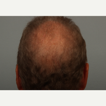 62 year old man treated with Hair Loss Treatment with microneedling and proprietary topical serum after 3453049