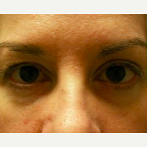 Woman treated with Restylane to tear troph after 1574457