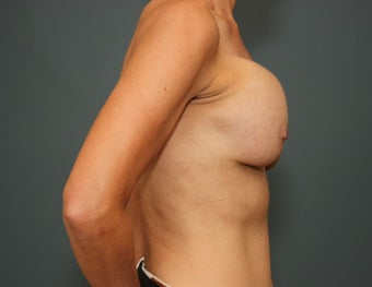45-54 year old woman requesting Breast Implant Revision 3782924