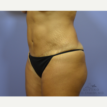 45-54 year old woman treated with Tummy Tuck before 3415616