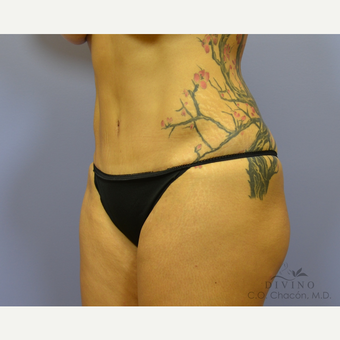 45-54 year old woman treated with Tummy Tuck after 3415616