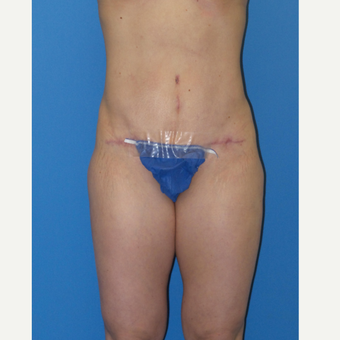 Abdominoplasty after 3338546