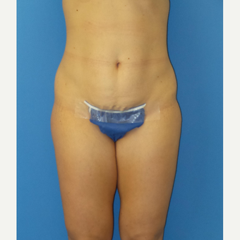 Abdominoplasty before 3338546