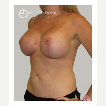 35-44 year old woman treated with Breast Lift with Implants 1617901