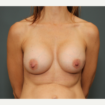 45-54 year old woman treated with Breast Augmentation after 2999415