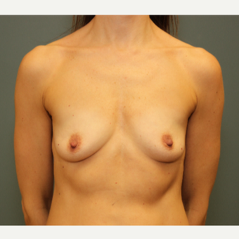 45-54 year old woman treated with Breast Augmentation before 2999415