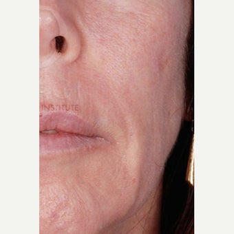 45-54 year old woman treated with Wrinkle Treatment after 2460323