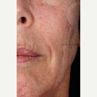 45-54 year old woman treated with Wrinkle Treatment before 2460323