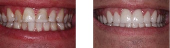 34 year old male treated for failed bondings placed to mask dental fluorosis and mottling of the tooth enamel .