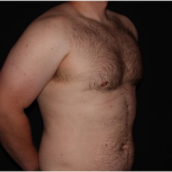 25-34 year old man treated with Male Breast Reduction after 3186590