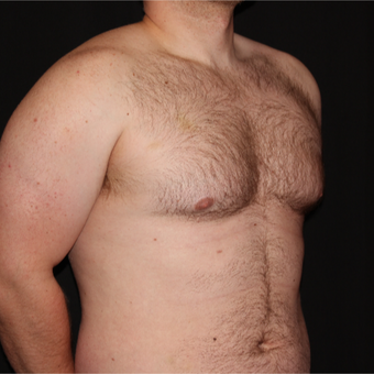 25-34 year old man treated with Male Breast Reduction before 3186590