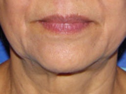 Skin Tightening for the Jawline and Neck after 1357671