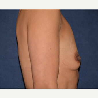 45-54 year old woman treated with Breast Augmentation before 3454892