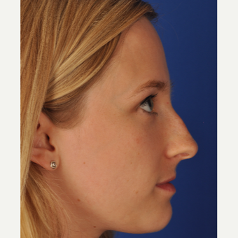 25 year old woman treated with Rhinoplasty before 3220372