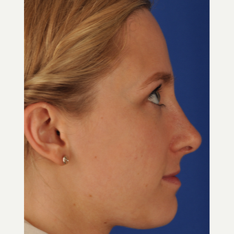 25 year old woman treated with Rhinoplasty after 3220372