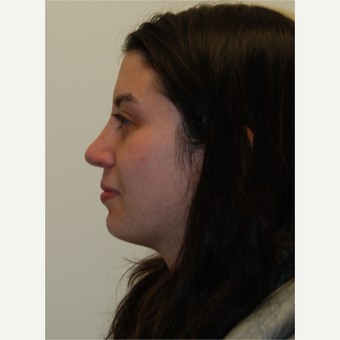 18-24 year old woman treated with Rhinoplasty after 3813736