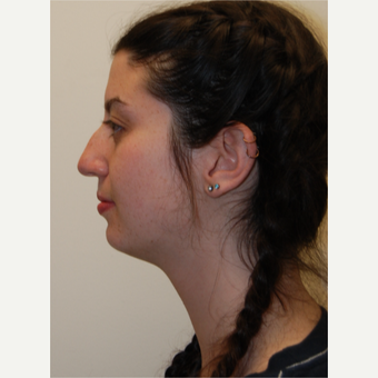 18-24 year old woman treated with Rhinoplasty before 3813736