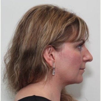35-44 year old woman treated with Rhinoplasty before 3055193