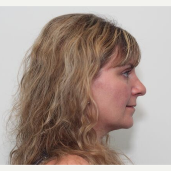 35-44 year old woman treated with Rhinoplasty after 3055193