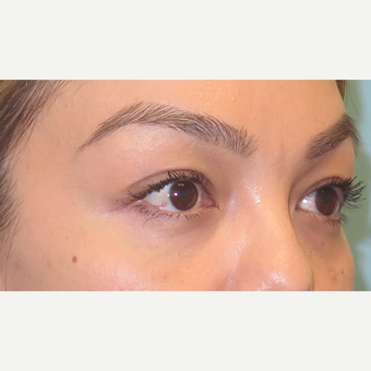 35-44 year old woman treated with Eyelid Surgery after 3550263