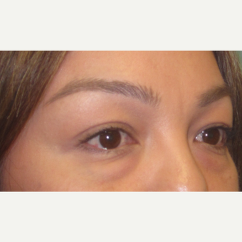 35-44 year old woman treated with Eyelid Surgery before 3550263