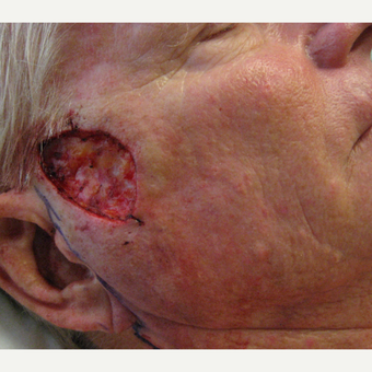 65-74 year old man treated with Mole Removal before 3850431