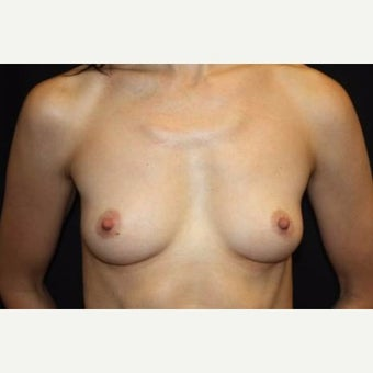 35-44 year old woman treated with Breast Augmentation before 2078473
