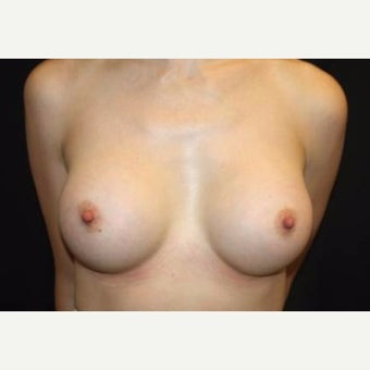 35-44 year old woman treated with Breast Augmentation after 2078473