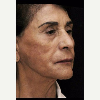 55-64 year old woman after 2604422