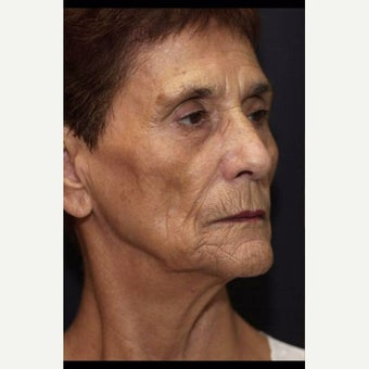 55-64 year old woman before 2604422
