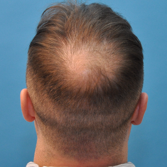 35 year old man treated with Neograft FUE Hair Transplant before 3094572