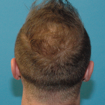 35 year old man treated with Neograft FUE Hair Transplant after 3094572