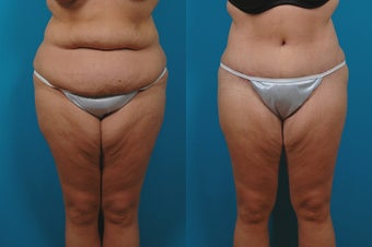36-year-old woman treated with Lower Body Lift. before 3265057