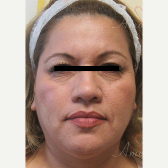 45-54 year old woman treated with Voluma before 3608002