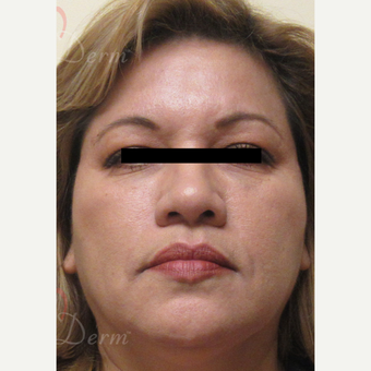 45-54 year old woman treated with Voluma after 3608002