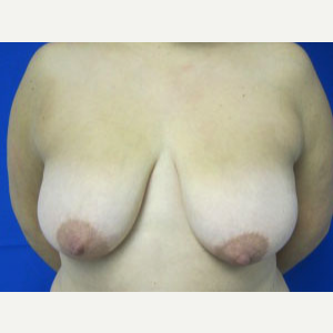 Breast Lift before 3055072