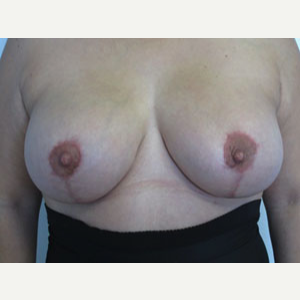 Breast Lift after 3055072