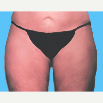 Liposuction after 3810605