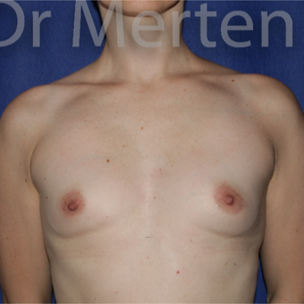 25-34 year old woman treated with Breast Augmentation before 3551651