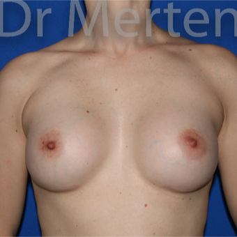 25-34 year old woman treated with Breast Augmentation after 3551651