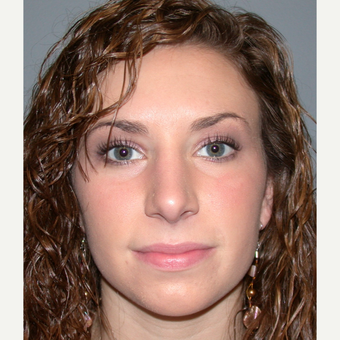 18-24 year old woman treated with Rhinoplasty after 3692274